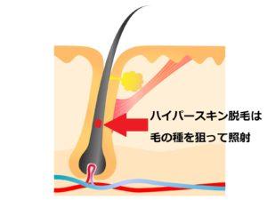 ハイパースキン脱毛方法