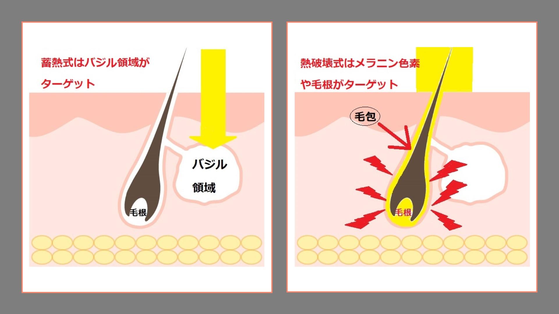 蓄熱式と熱破壊式(比較)